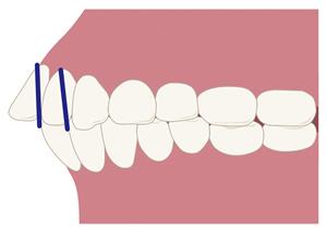 歯が傾斜・捻転する
